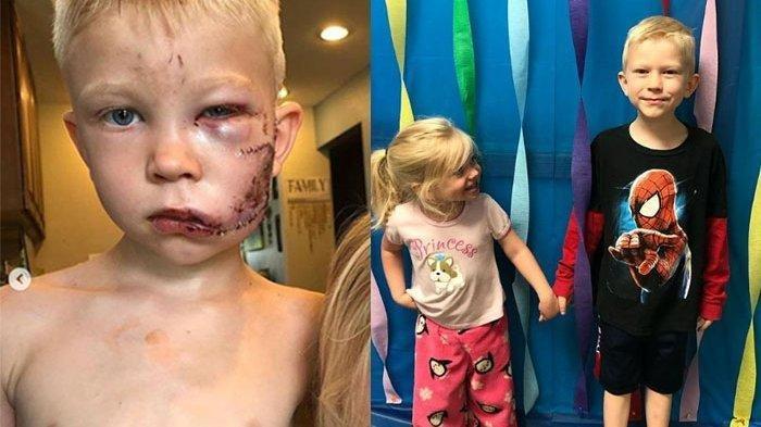 Bocah 6 Tahun Selamatkan Adiknya dari Serangan Anjing, Wajahnya Sobek!