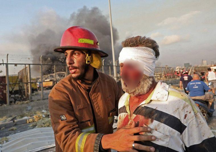 Dunia Berduka! Foto Memilukan Ledakan Dahsyat di Beirut, Langit Lebanon Seperti 'Terbelah'