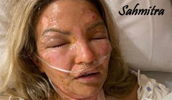 Seorang Wanita Alami Luka Bakar Parah karena Hand Sanitizer Terkena Api