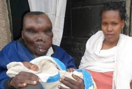 Pria Terjelek di Uganda Nikahi Istri Ketiga, Sekarang Punya 7 Anak